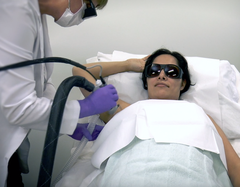 woman getting laser hair removal
