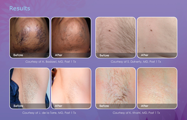 marketing materials hair removal email results